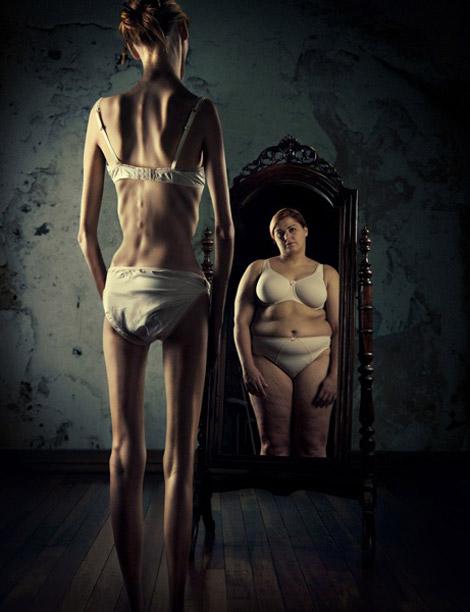 Anoreksja – moja siostra