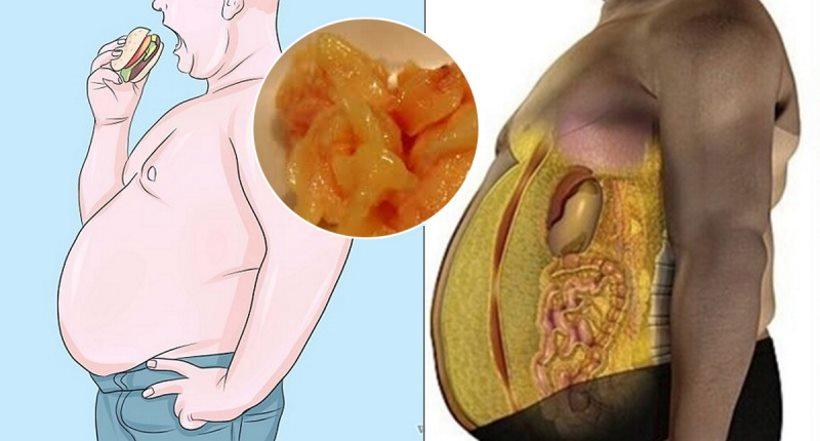 Czy tłuszcz na naszym ciele, zawsze jest widoczny? Kilka słów o tkance tłuszczowej trzewnej.
